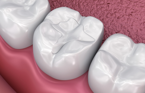 Chandler Tooth-Colored-Fillings