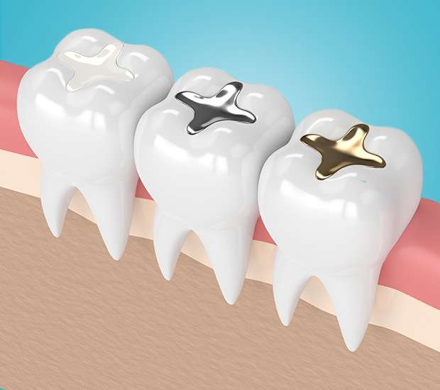 Chandler Composite Fillings