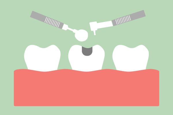 Can Mercury Leak From Amalgam Fillings Or Other Dental Fillings?   Quick Facts