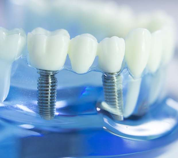 Chandler Dental Implants