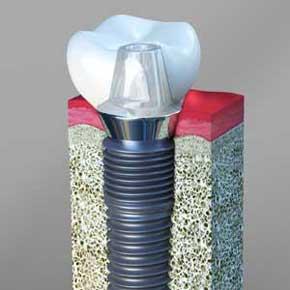 Chandler Dental Implants