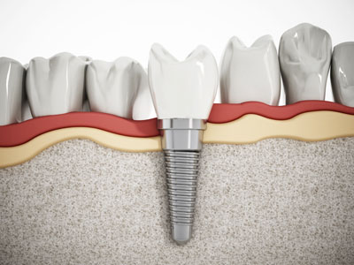 Signs That It&#    ;s Time To Replace Teeth Mini Implants