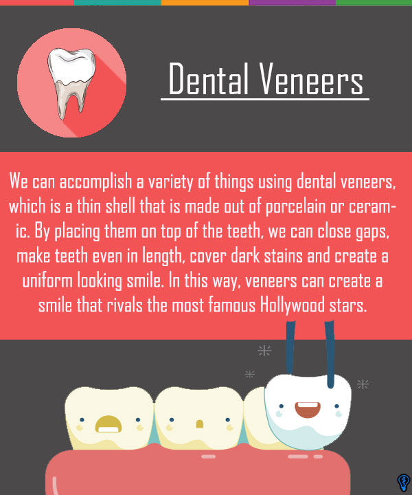 Dental Veneers and Dental Laminates Chandler, AZ