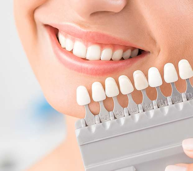 Chandler Dental Veneers and Dental Laminates