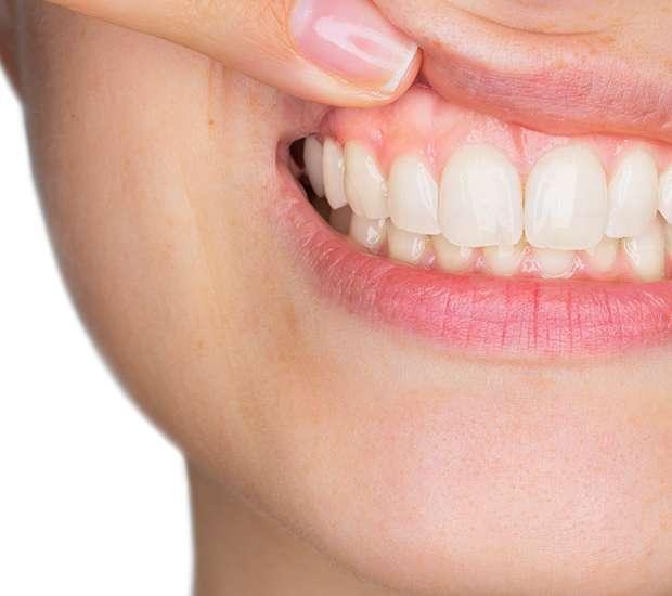 Chandler Gum Disease