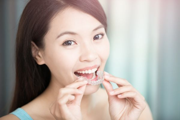 Know The Facts Behind Invisalign®
