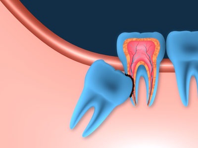 Here Is What You Should Know About Wisdom Teeth Extractions